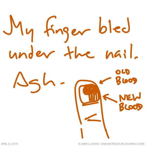 My finger bled under the nail
